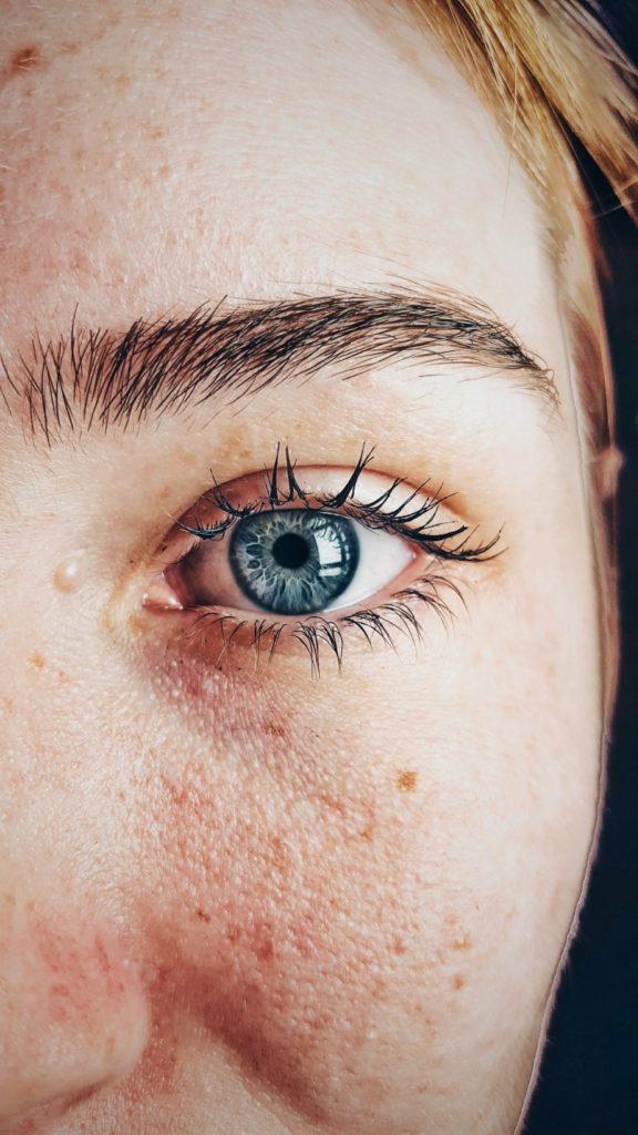 common facial skin problems