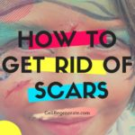 How to get rid of scars?