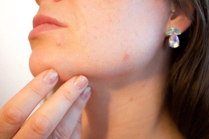 Acne scars laser treatment