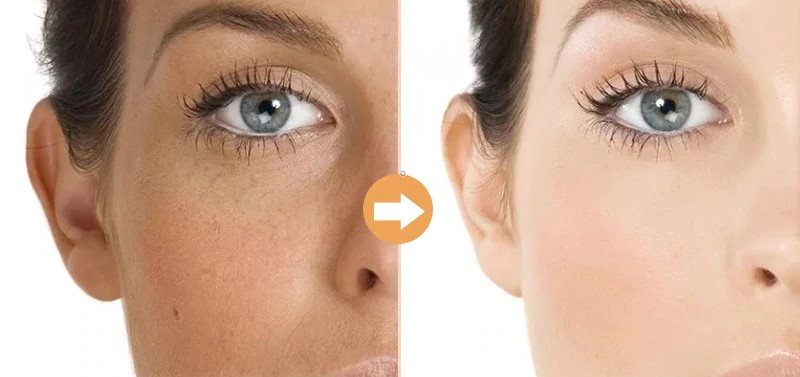 Acne scars laser treatment young woman
