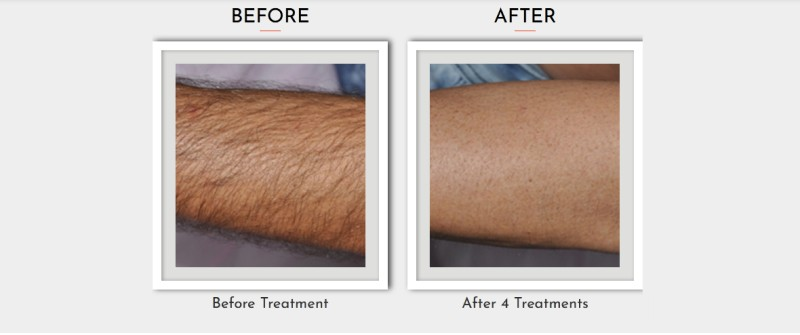 Laser Machine In Hair Removal Effects