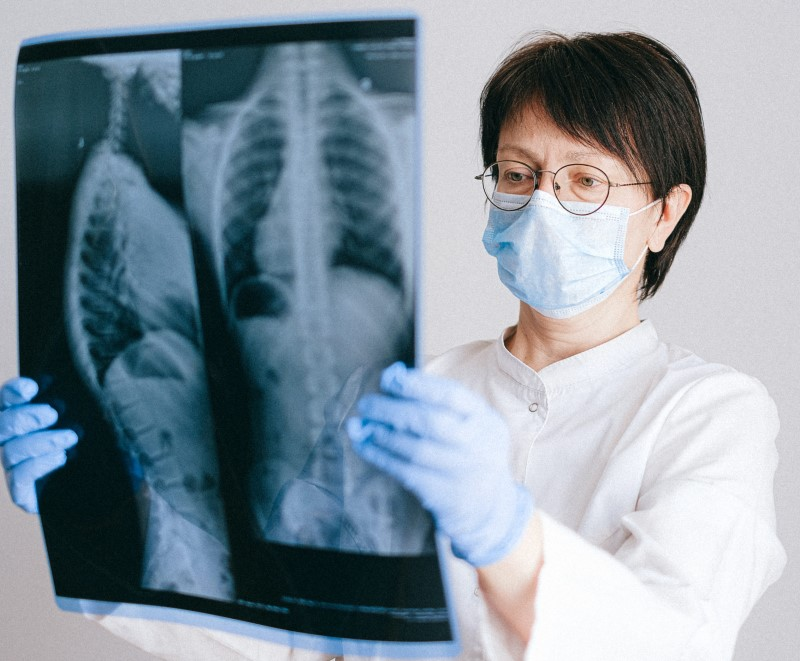 Reading the chest radiograph