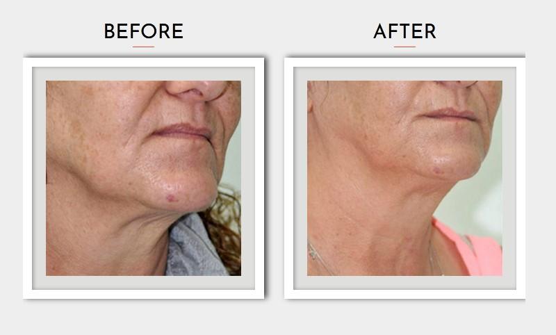 Skin Rejuvenation Treatment