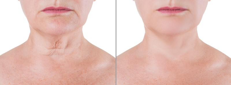 Thermage Treatment Effects